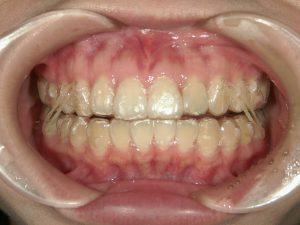 1/2.2 , Dental2 , LR
