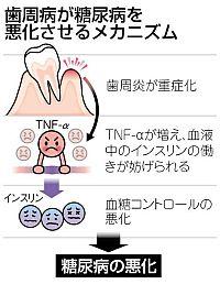歯周病(2)