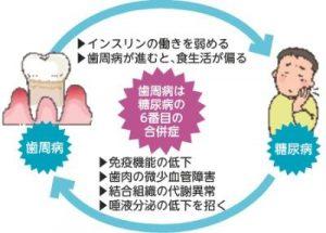 歯周病(1)